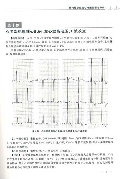 结构性心脏病心电图诊断与分析(含光盘)-卢喜烈