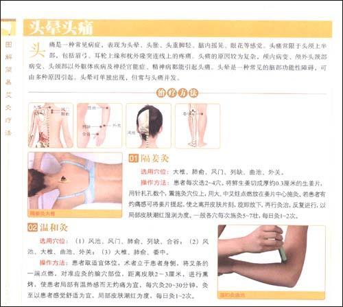图解简易艾灸疗法-王景霞-中医养生-文轩网