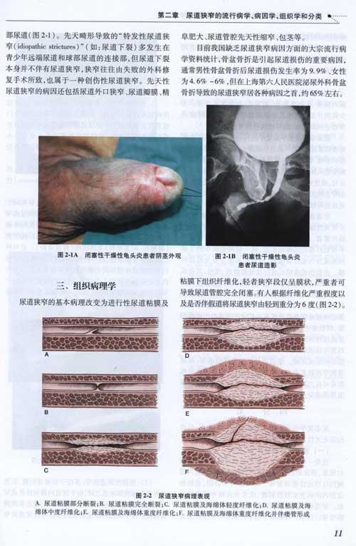尿道结石是怎么形成的